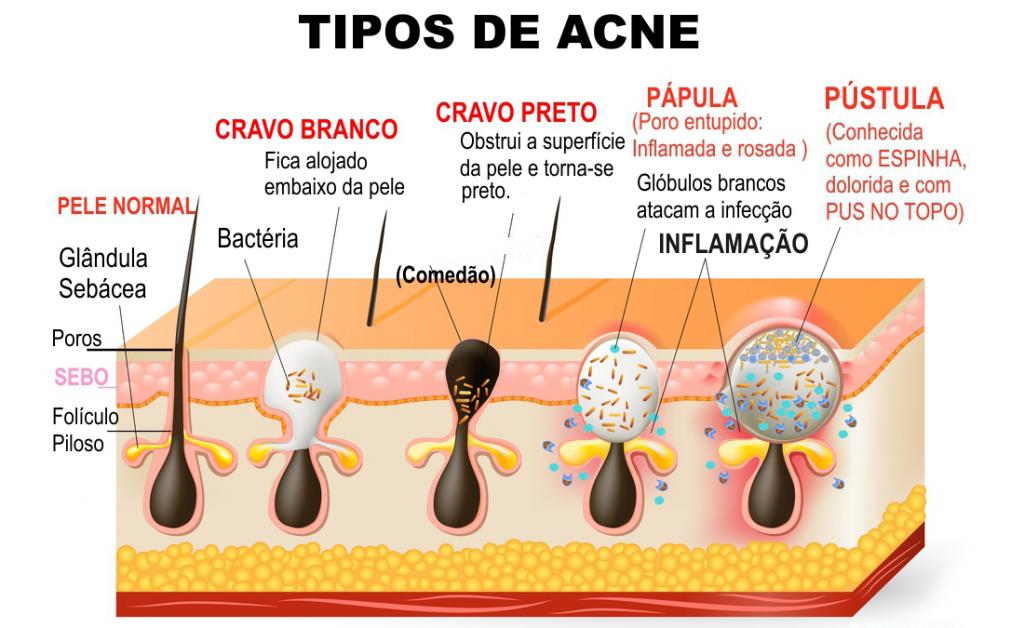 Resultado de imagem para acne vulgar